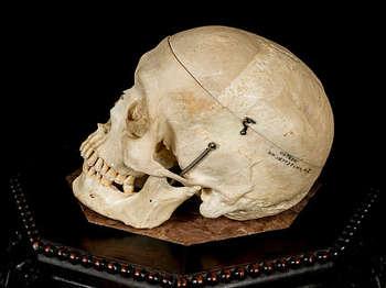 Real Human Skull For Sale - Performing Arts | David